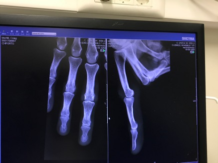 X-ray shows no fractures